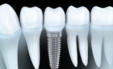 implantologie marseille