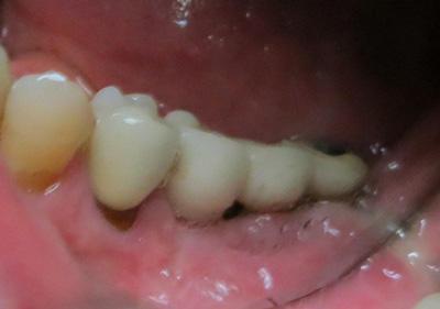 cas-de-peri-implantite1