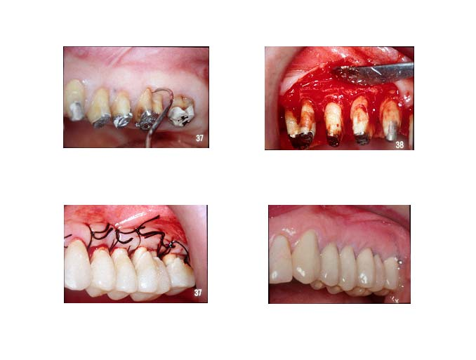 traitement-lesion-inter-radiculaire-1