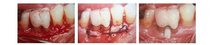 traitement-lesion-inter-radiculaire-5